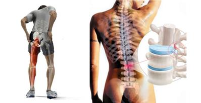5 Potentes consejos para ayudarte Aliviar dolor de rodilla